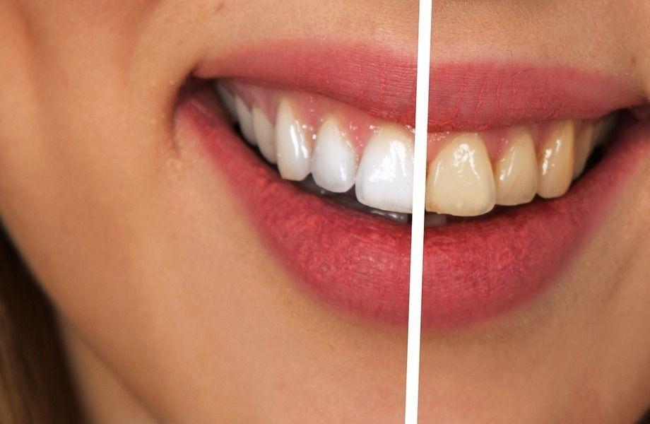 Прибыльная студия отбеливания зубов по франшизе